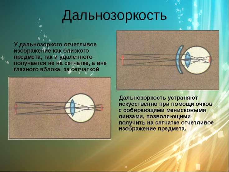 Дальнозоркость У дальнозоркого отчетливое изображение как близкого предмета, ...