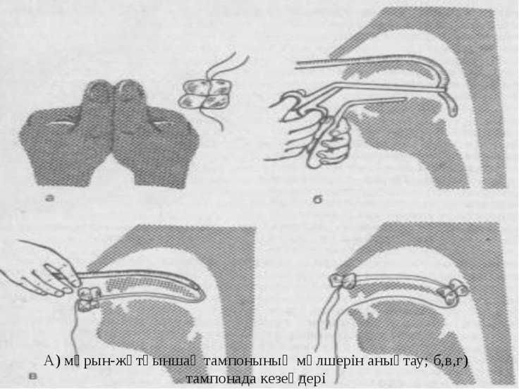 А) мұрын-жұтқыншақ тампонының мөлшерін анықтау; б,в,г) тампонада кезеңдері