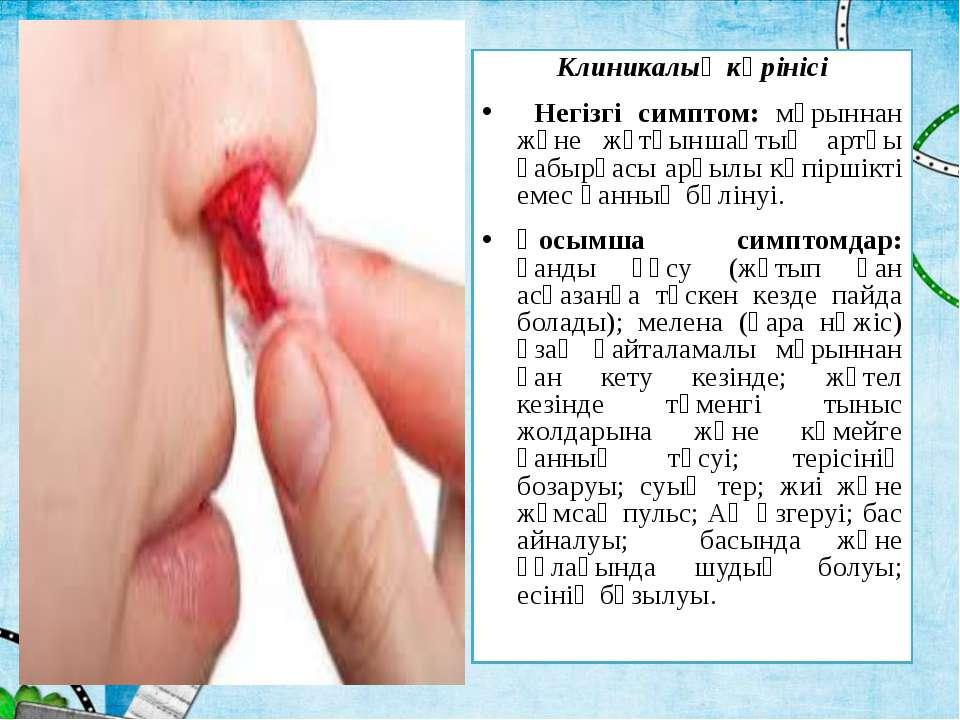 Клиникалық көрінісі Негізгі симптом: мұрыннан және жұтқыншақтың артқы қабырға...