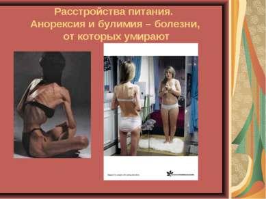 Расстройства питания. Анорексия и булимия – болезни, от которых умирают