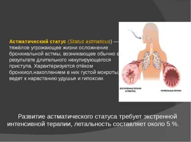 Астматический статус (Status astmaticus) — тяжёлое угрожающее жизни осложнени...