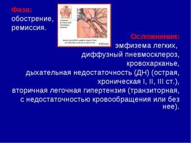 Фаза: обострение, ремиссия. Осложнения: эмфизема легких, диффузный пневмоскле...