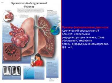 Пример формулировки диагноза: Хронический обструктивный бронхит, непрерывно р...
