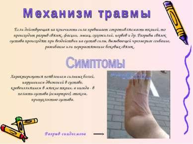 Если действующая на конечность сила превышает сопротивляемость тканей, то про...