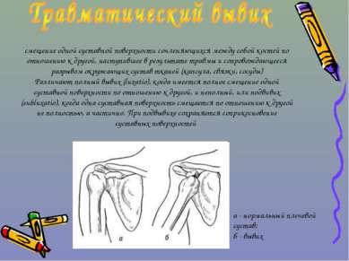 смещение одной суставной поверхности сочленяющихся между собой костей по отно...