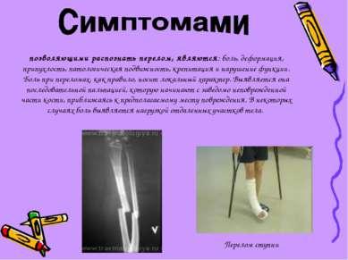 позволяющими распознать перелом, являются: боль, деформация, припухлость, пат...
