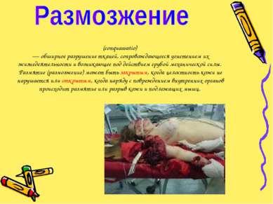(conquassatio) — обширное разрушение тканей, сопровождающееся угнетением их ж...