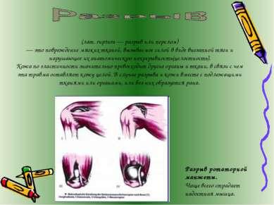 (лат. ruptura— разрыв или перелом) — это повреждение мягких тканей, вызывае...