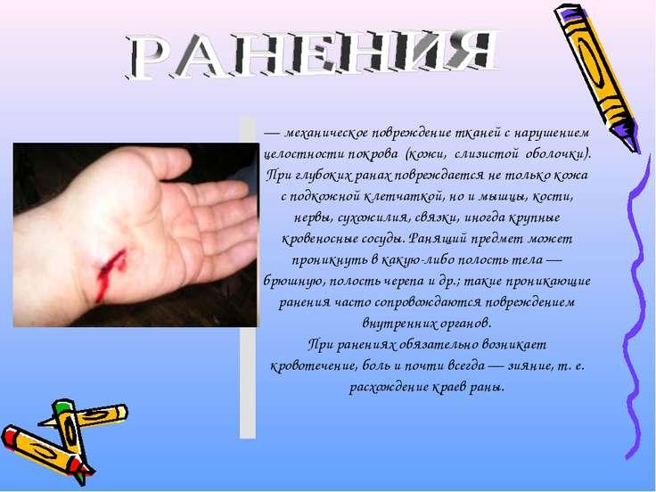 — механическое повреждение тканей с нарушением целостности покрова (кожи,...