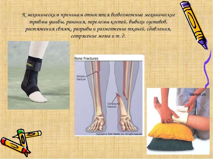 К механическим причинам относятся всевозможные механические травмы ушибы, ран...