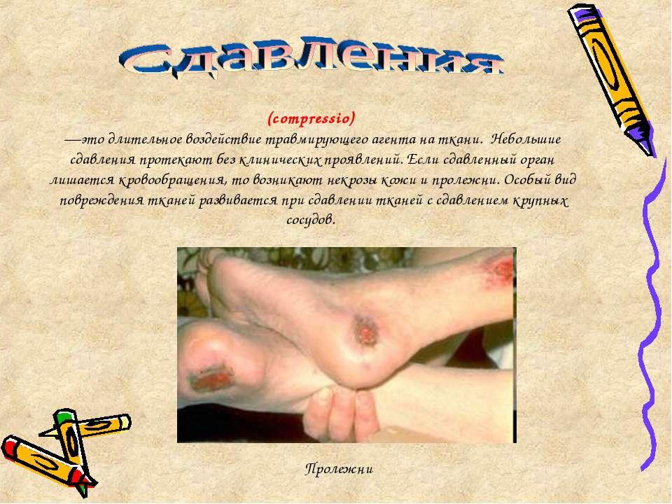 (compressio) —это длительное воздействие травмирующего агента на ткани. Небол...