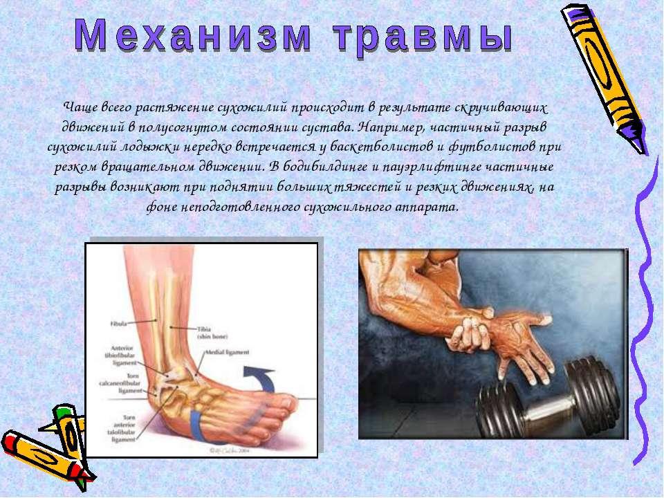 Чаще всего растяжение сухожилий происходит в результате скручивающих движений...