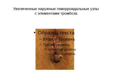 Увеличенные наружные геморроидальные узлы с элементами тромбоза
