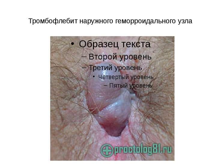 Тромбофлебит наружного геморроидального узла