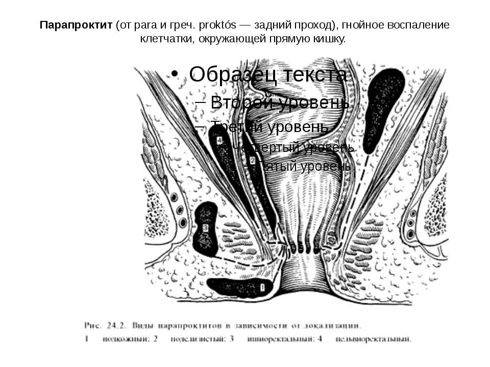 Парапроктит (от para и греч. proktós — задний проход), гнойное воспаление кле...