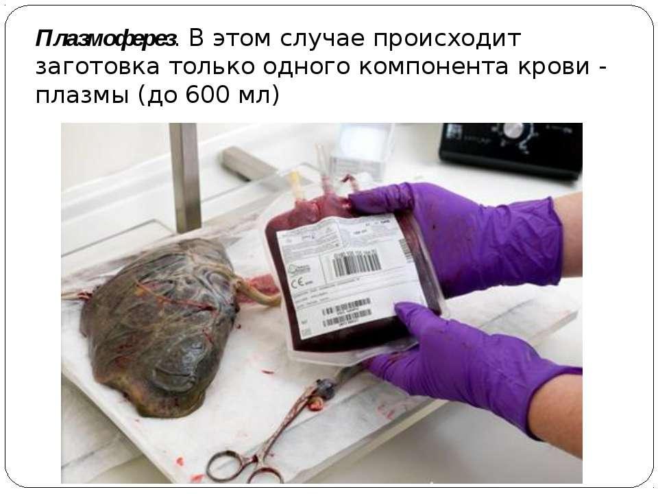 Плазмоферез. В этом случае происходит заготовка только одного компонента кров...