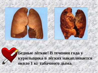 Бедные лёгкие! В течении года у курильщика в лёгких накапливается около 1 кг ...