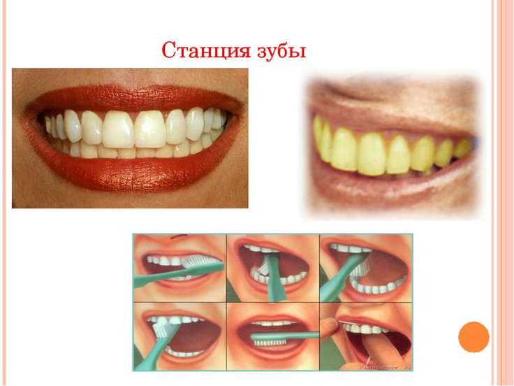 Станция зубы