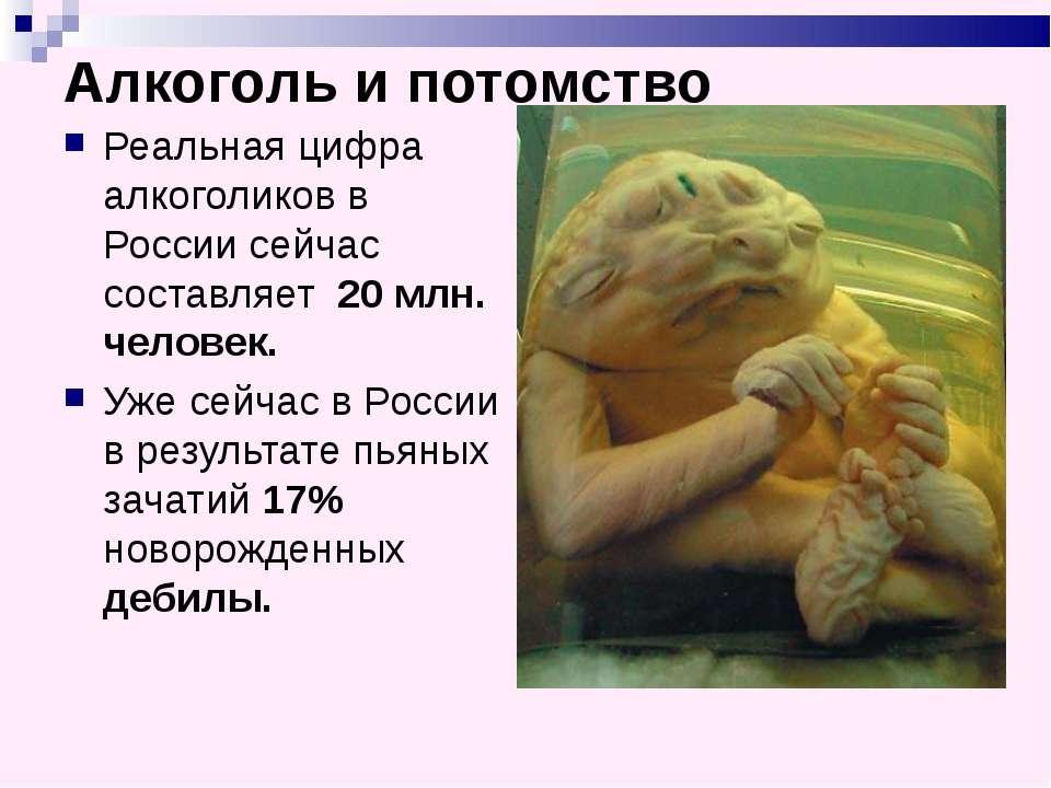 Алкоголь и потомство Реальная цифра алкоголиков в России сейчас составляет 20...