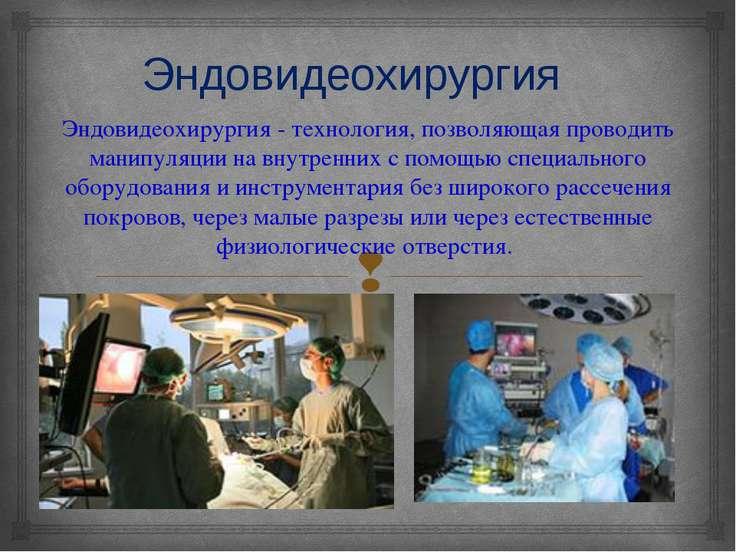 Эндовидеохирургия Эндовидеохирургия - технология, позволяющая проводить манип...