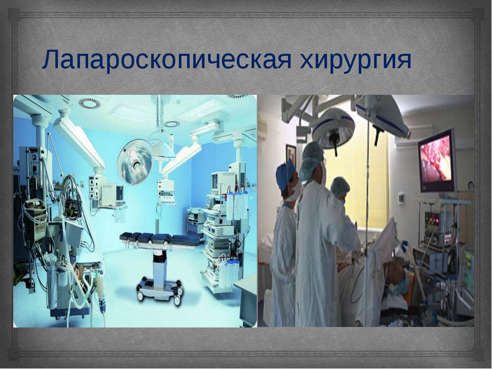 Лапароскопическая хирургия