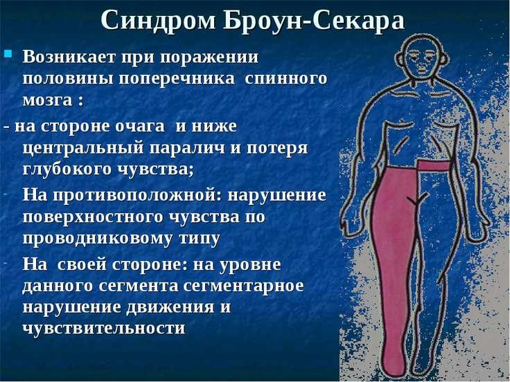 Синдром Броун-Секара Возникает при поражении половины поперечника спинного мо...