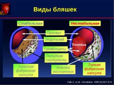 Виды бляшек Falk E, et al. Circulation. 1995;92:657-671 Стабильная Нестабильн...