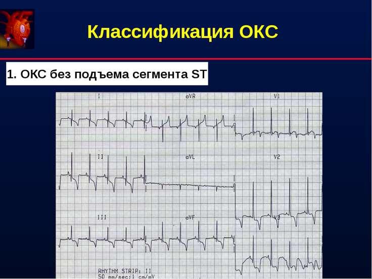 Классификация ОКС 1. ОКС без подъема сегмента ST