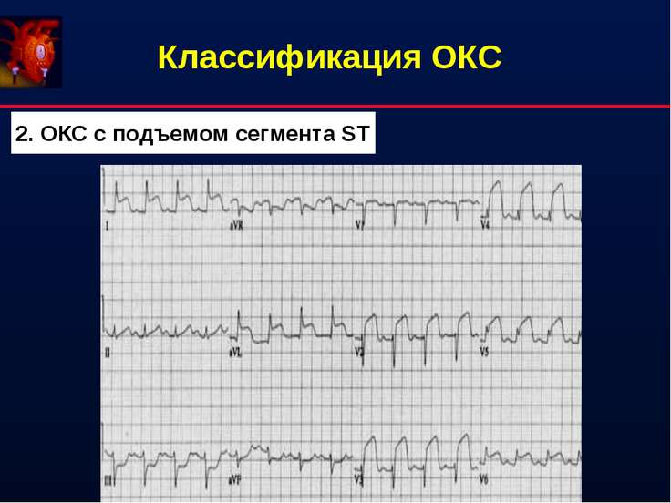 Классификация ОКС 2. ОКС с подъемом сегмента ST