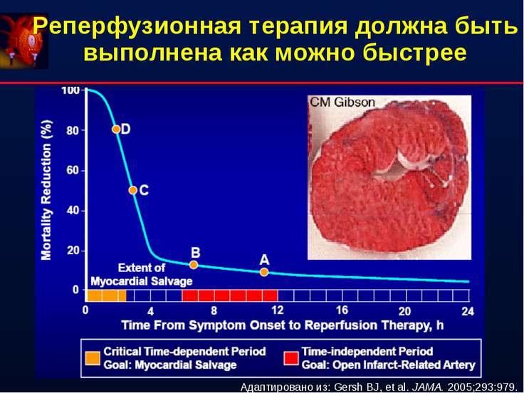 Реперфузионная терапия должна быть выполнена как можно быстрее Адаптировано и...