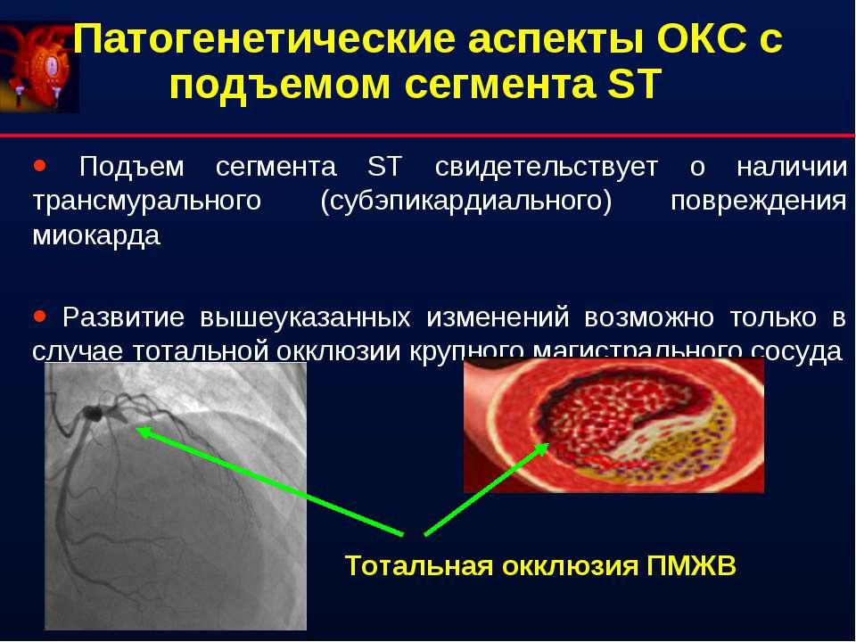 Патогенетические аспекты ОКС с подъемом сегмента ST Подъем сегмента ST свидет...