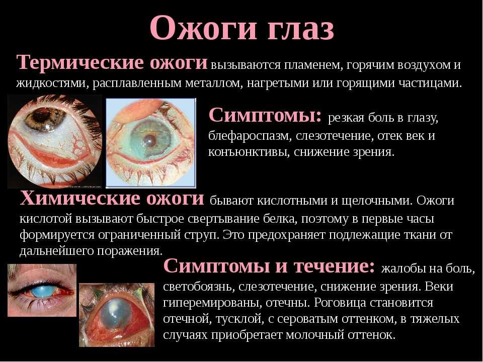 Ожоги глаз Термические ожоги вызываются пламенем, горячим воздухом и жидкостя...