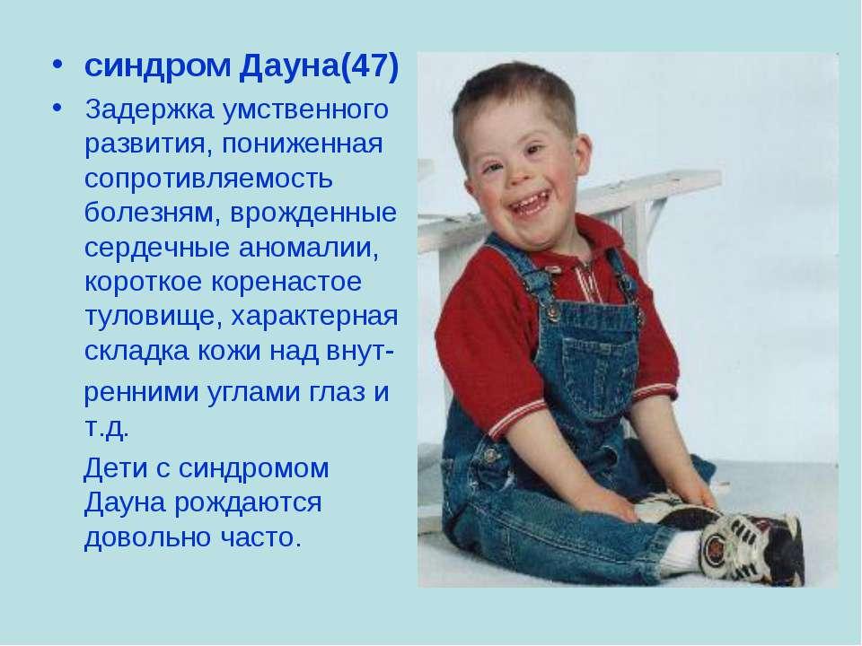 синдром Дауна(47) Задержка умственного развития, пониженная сопротивляемость ...