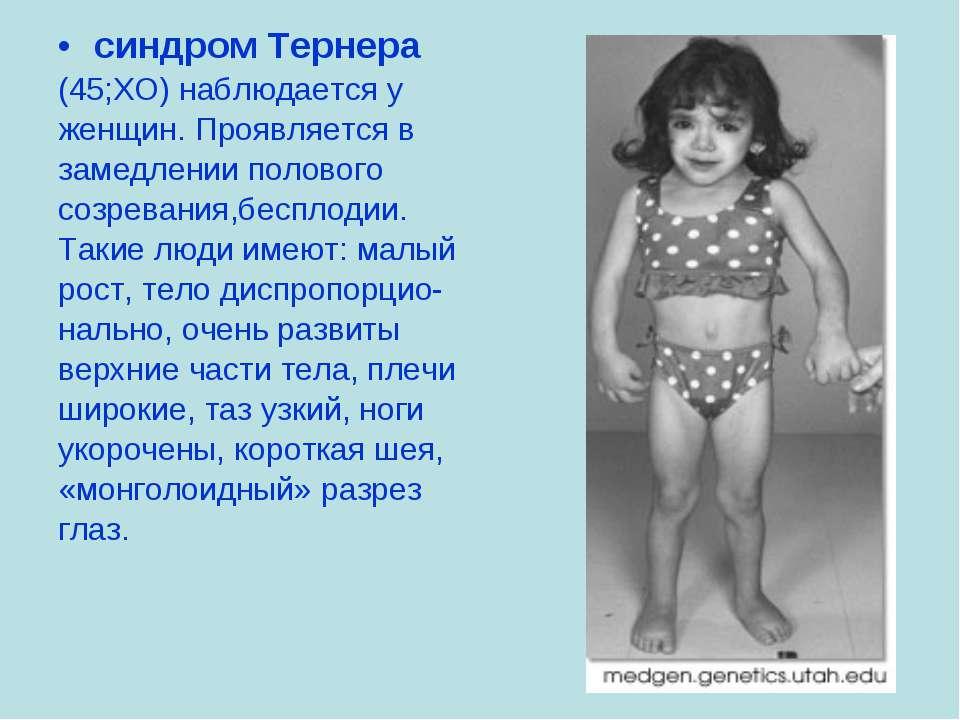 синдром Тернера (45;ХО) наблюдается у женщин. Проявляется в замедлении полово...