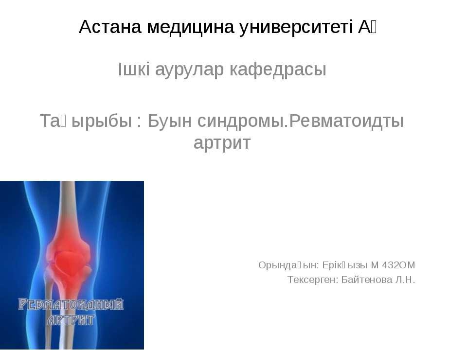 Астана медицина университеті АҚ Ішкі аурулар кафедрасы Тақырыбы : Буын синдро...