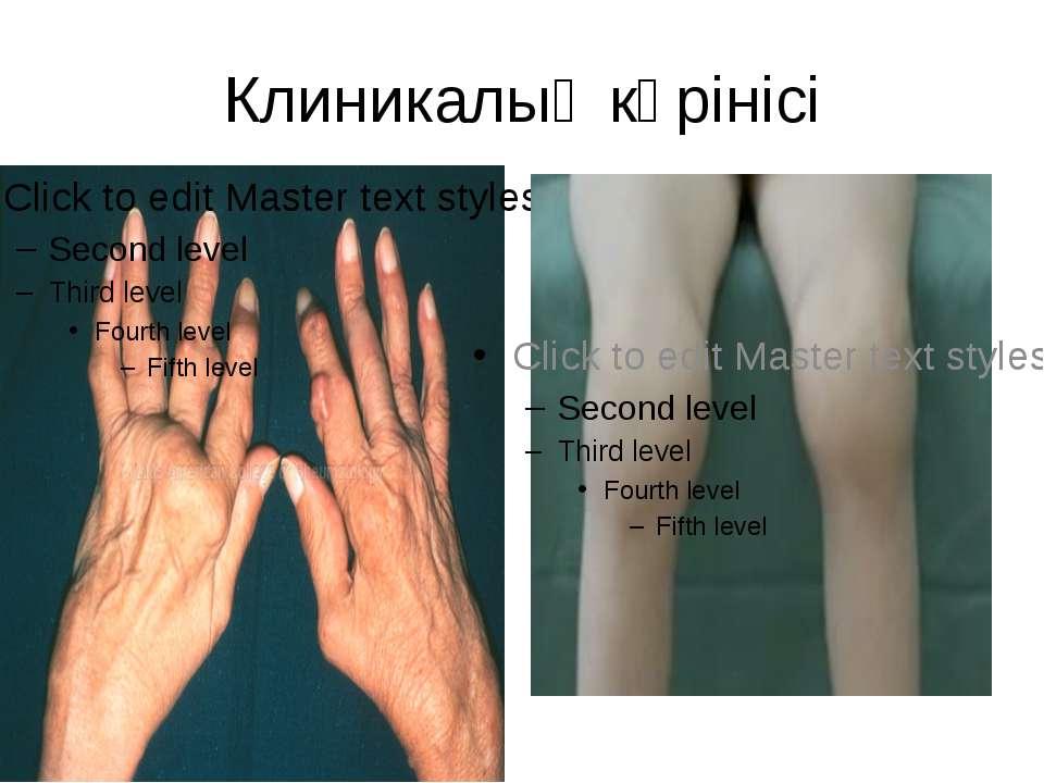 Клиникалық көрінісі