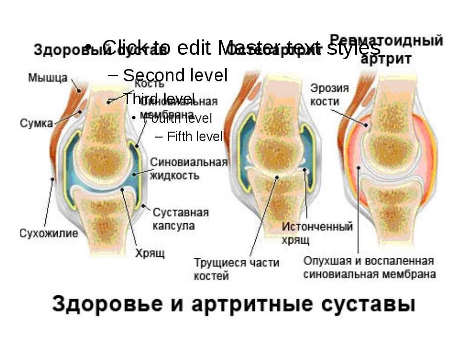 артрита полиартрита суставов