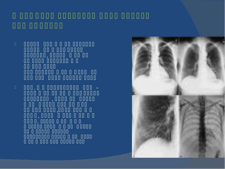 რენტგენი სხივების გამოყენება მედიცინაში გაივლიან რა ადამიანის სხეულში რენტგენ...