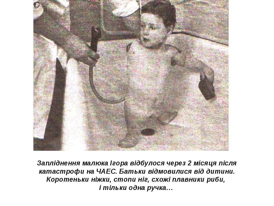 Запліднення малюка Ігора відбулося через 2 місяця після катастрофи на ЧАЕС. Б...