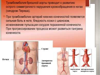 Тромбоэмболия брюшной аорты приводит к развитию острого симметричного нарушен...