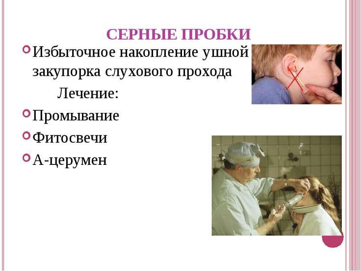 СЕРНЫЕ ПРОБКИ Избыточное накопление ушной серы может закупорка слухового прох...