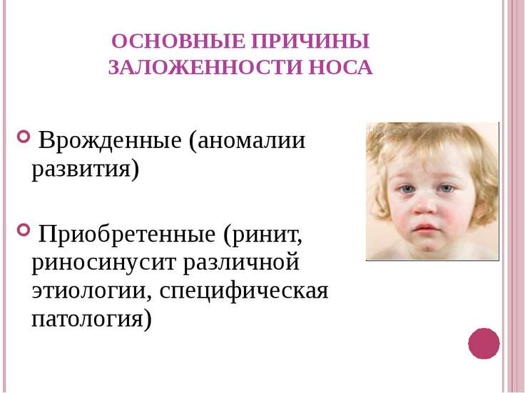 ОСНОВНЫЕ ПРИЧИНЫ ЗАЛОЖЕННОСТИ НОСА Врожденные (аномалии развития) Приобретенн...