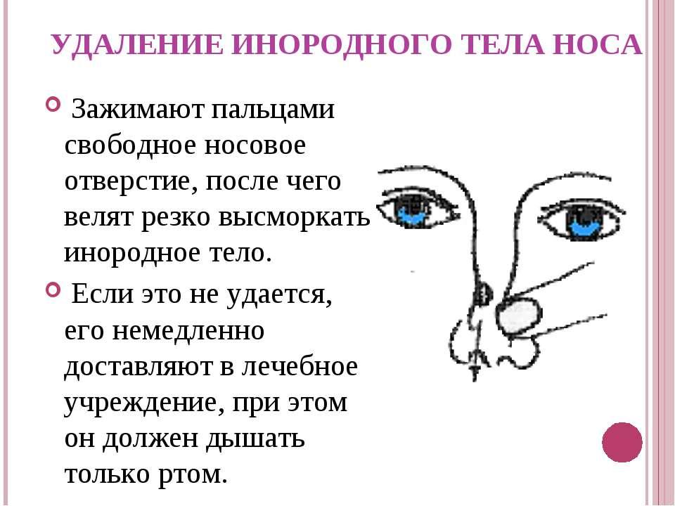 УДАЛЕНИЕ ИНОРОДНОГО ТЕЛА НОСА Зажимают пальцами свободное носовое отверстие, ...