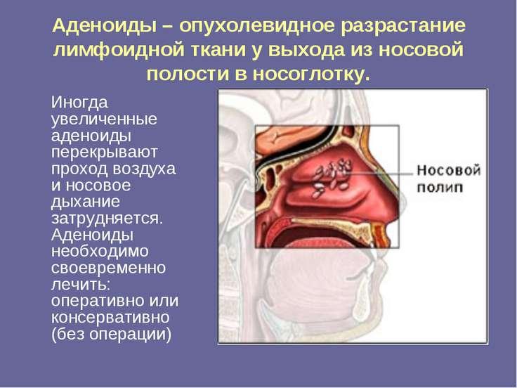 Аденоиды – опухолевидное разрастание лимфоидной ткани у выхода из носовой пол...