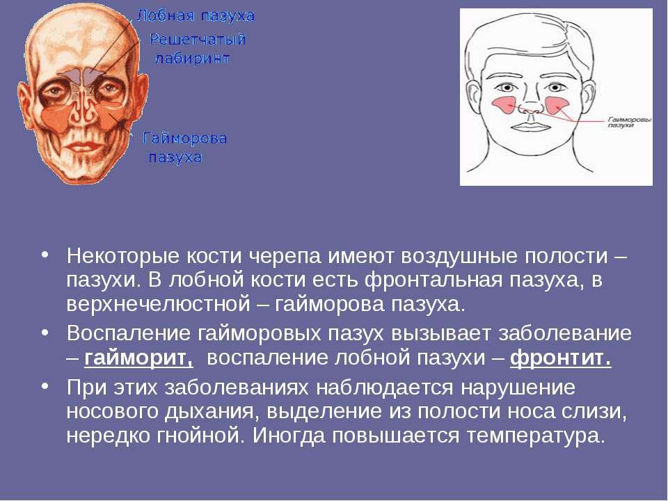 Некоторые кости черепа имеют воздушные полости – пазухи. В лобной кости есть ...