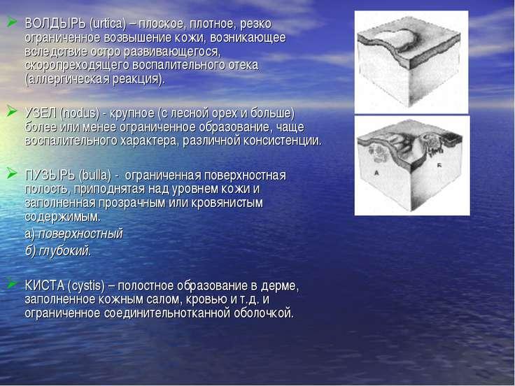 ВОЛДЫРЬ (urtica) – плоское, плотное, резко ограниченное возвышение кожи, возн...