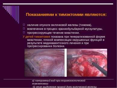 Показаниями к тимэктомии являются: наличие опухоли вилочковой железы (тимома)...