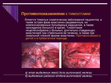 Противопоказаниямик тимэктомии Яляются тяжелые соматические заболевания паци...