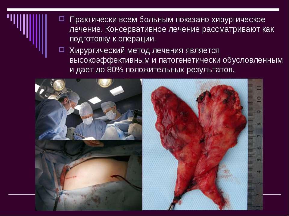 Практически всем больным показано хирургическое лечение. Консервативное лечен...