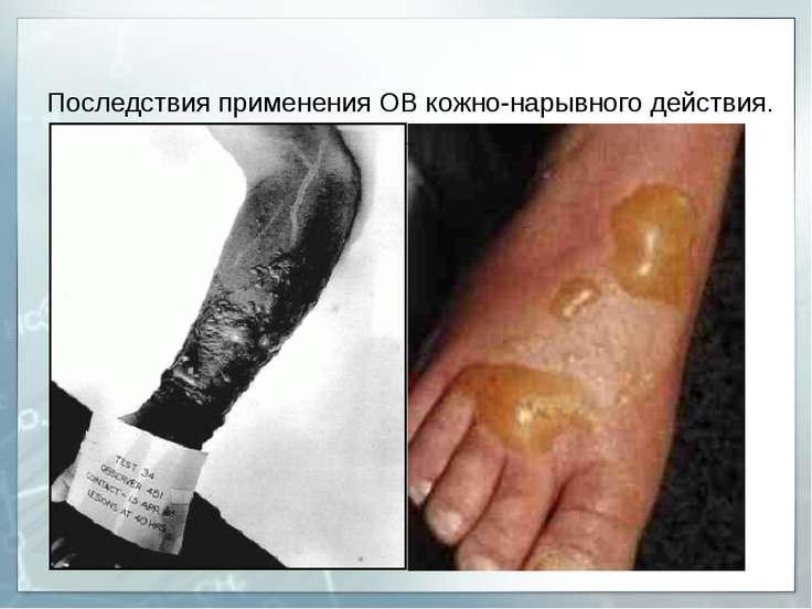 Последствия применения ОВ кожно-нарывного действия.